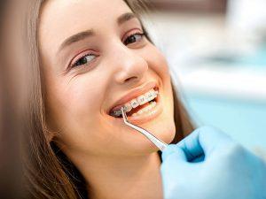 ortodoncia con brackets
