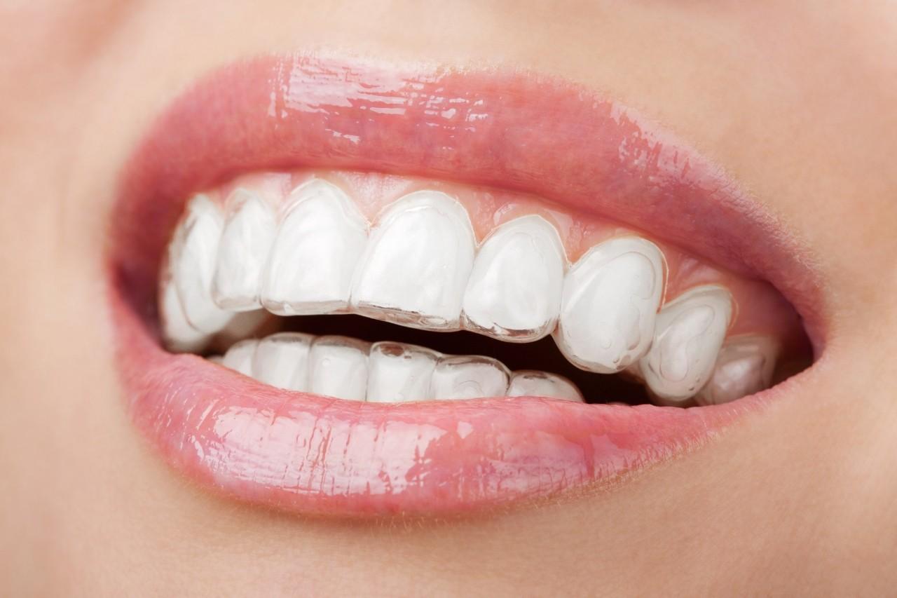 invisalign - ortodoncia invisible
